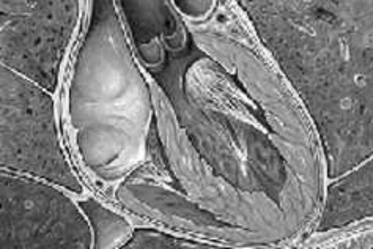 Imagen de insuficiencia cardiaca.