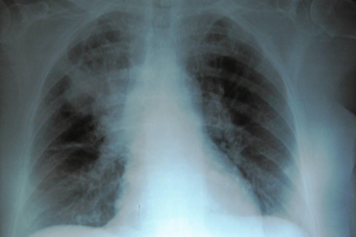 Radiografía de pulmones con fibrosis quística.