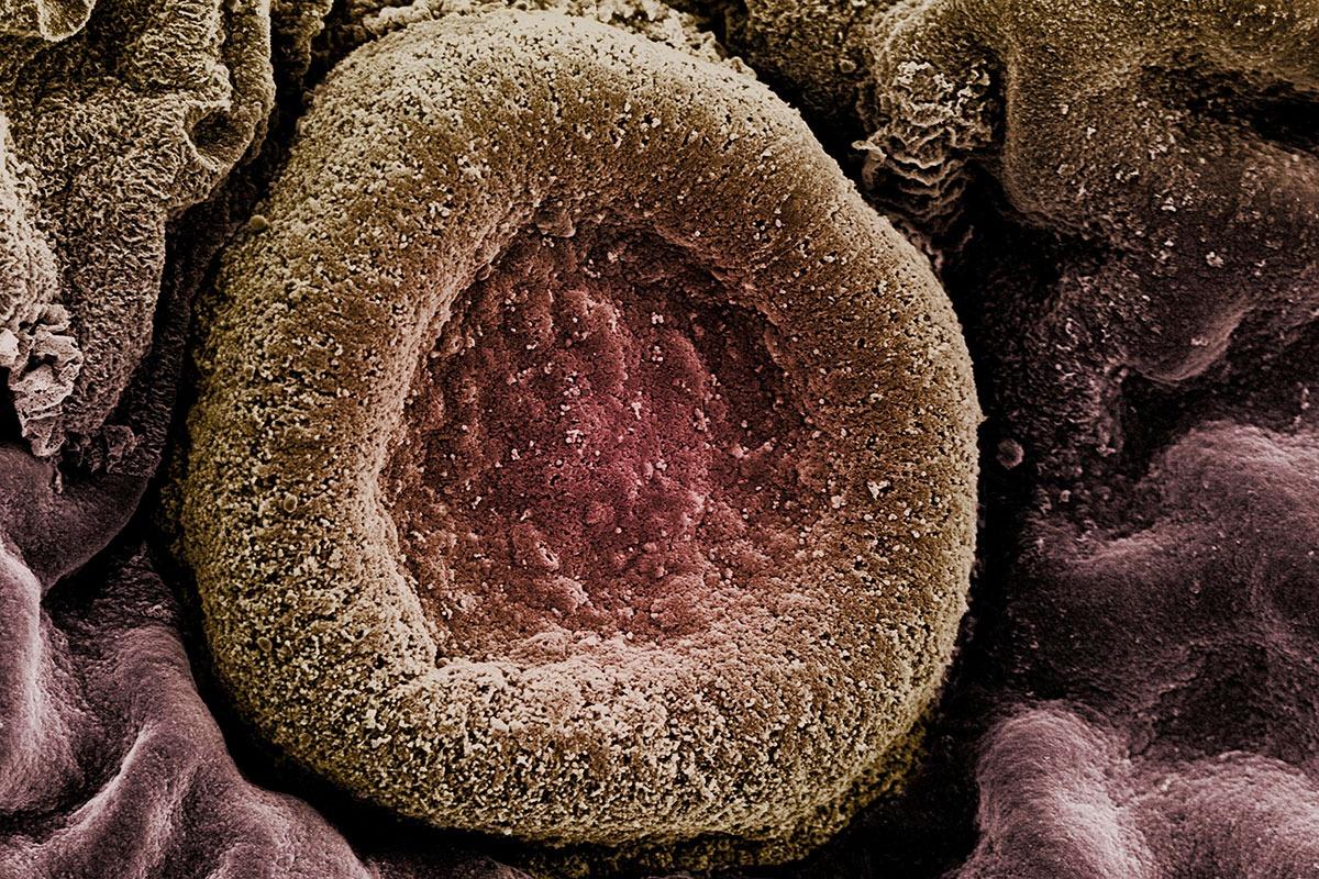 La nueva vacuna se dirige a 20 serotipos de 'Streptococcus pneumoniae', causante de enfermedad neumocócica invasiva.