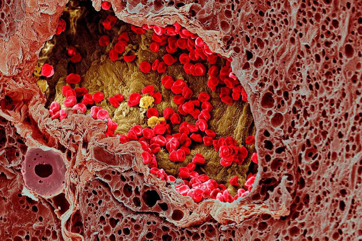 El melanoma es la causa más frecuente de mortalidad por cáncer de piel. Foto: Wellcome Collection