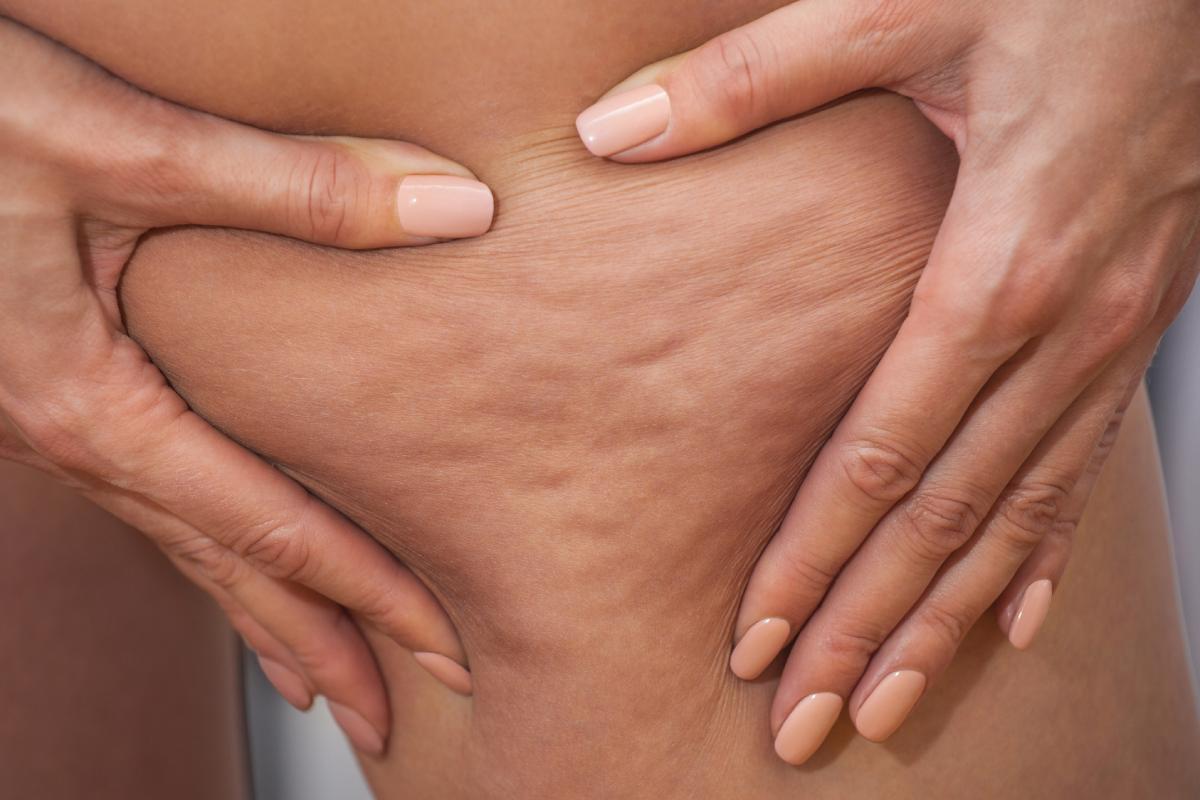 Lacelulitises un trastorno del tejido subcutáneo debido al acúmulo de toxinas, líquidos y grasa, que se acompaña de cambios en la microcirculación del tejido conjuntivo.