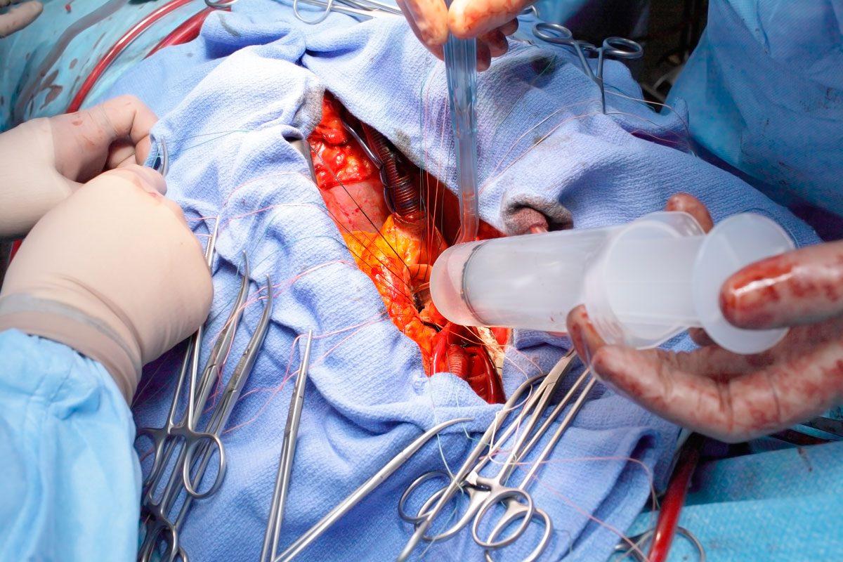 Cirugía Cardiovascular, Cirugía General y Cirugía Torácica son tres de las once especialidades que se han agotado este viernes.