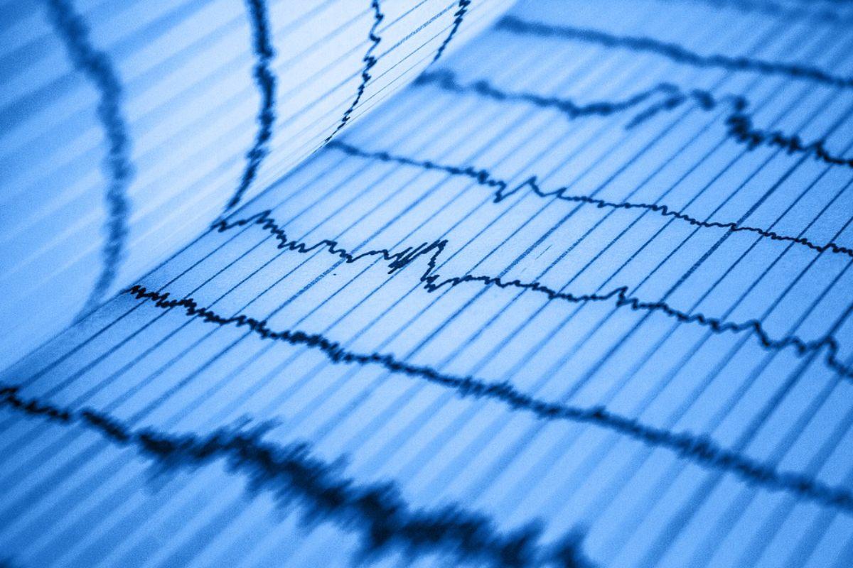 El electrocardiograma es una técnica diagnóstica económica, accesible y se ha venido usando desde hace más de un siglo.
