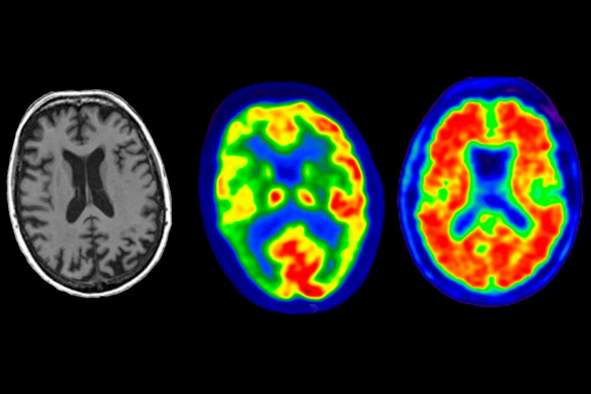 Imagen en la atrofia cortical posterior por enfermedad de Alzheimer, por resonancia magnética, PET con 18F-fluorodesoxiglucosa y PET con 18F-florbetapir.