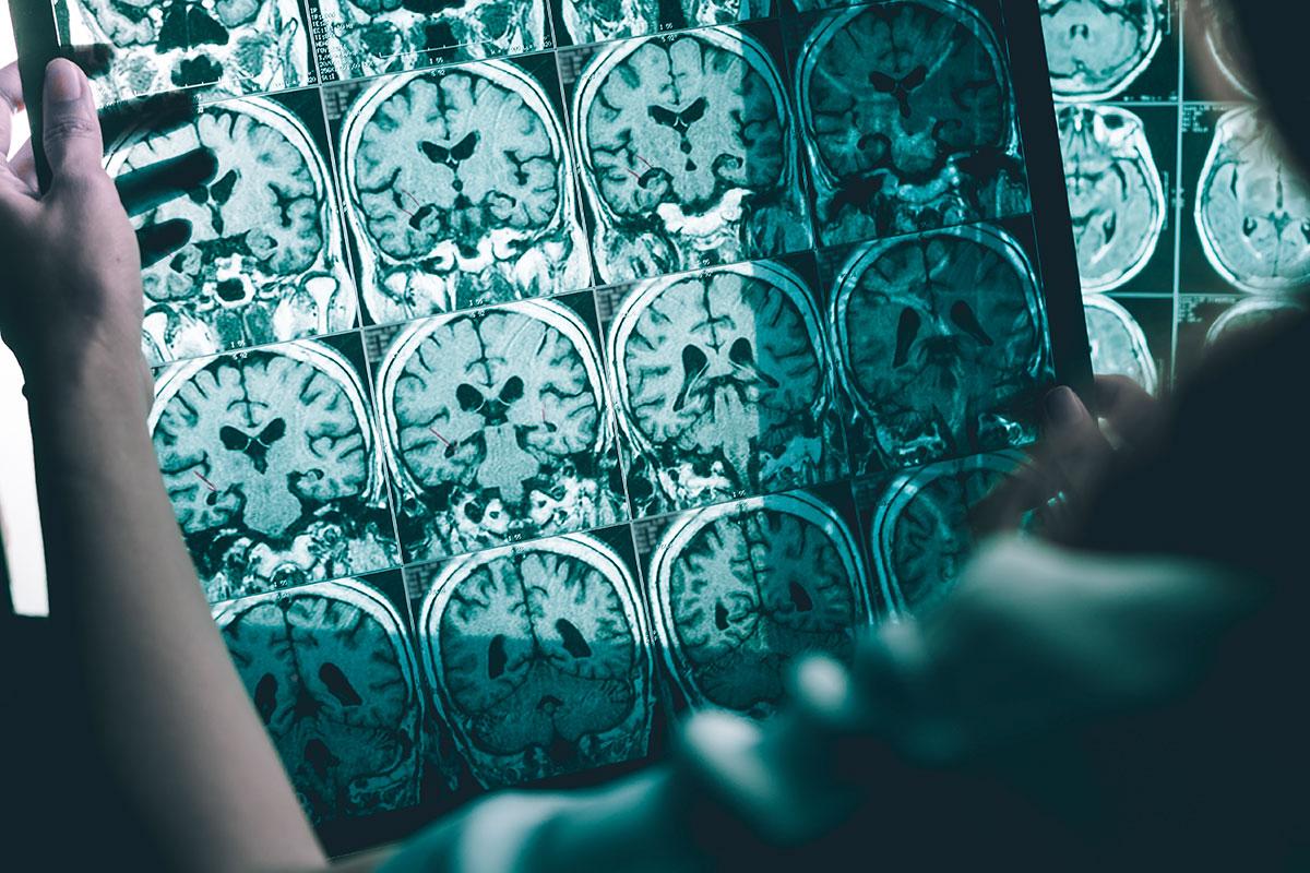 El Alzheimer es el tipo de demencia más frecuente.