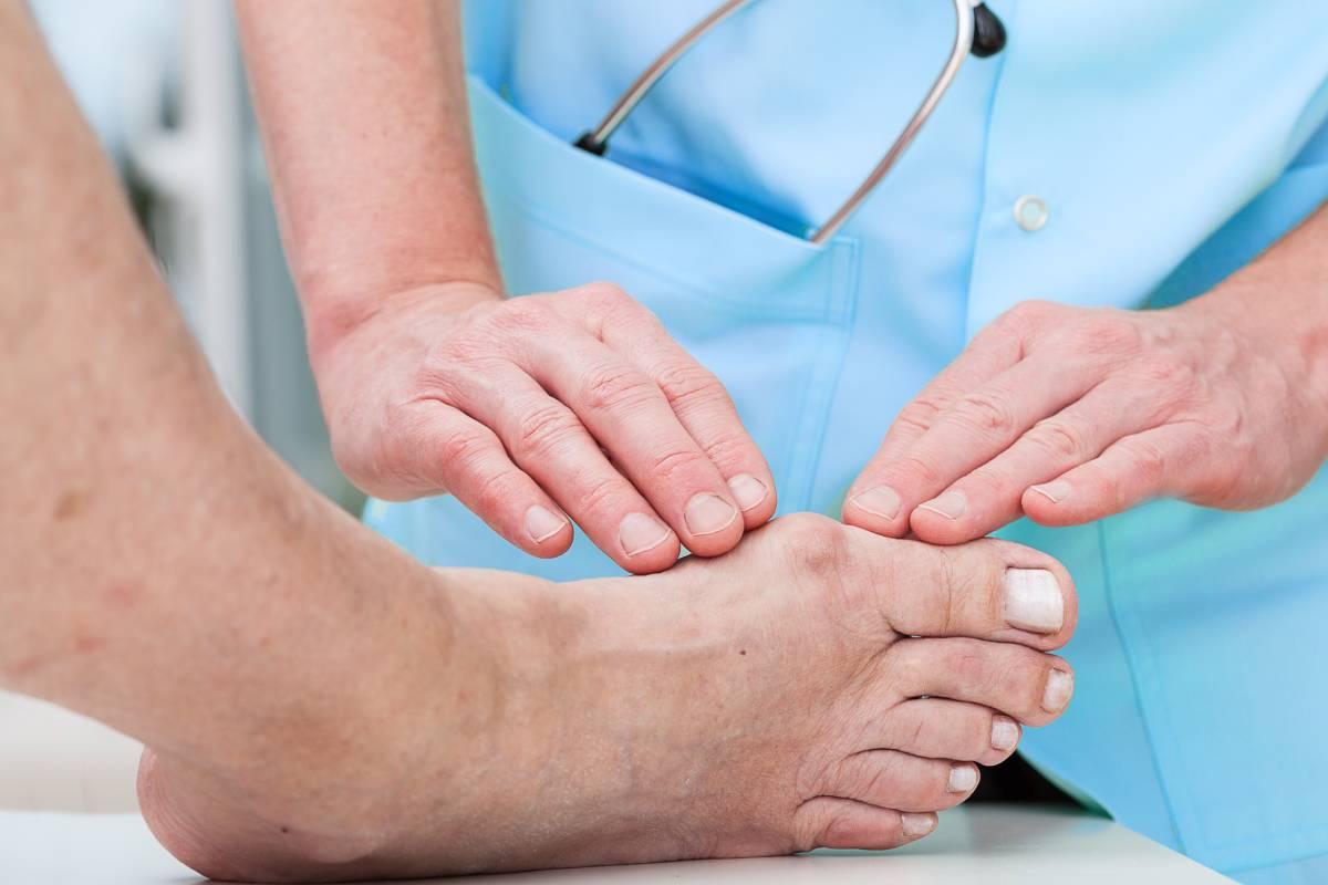 Un estudio de seguimiento confirma la mejora en la calidad de vida tras cirugía de corrección del hallux valgu