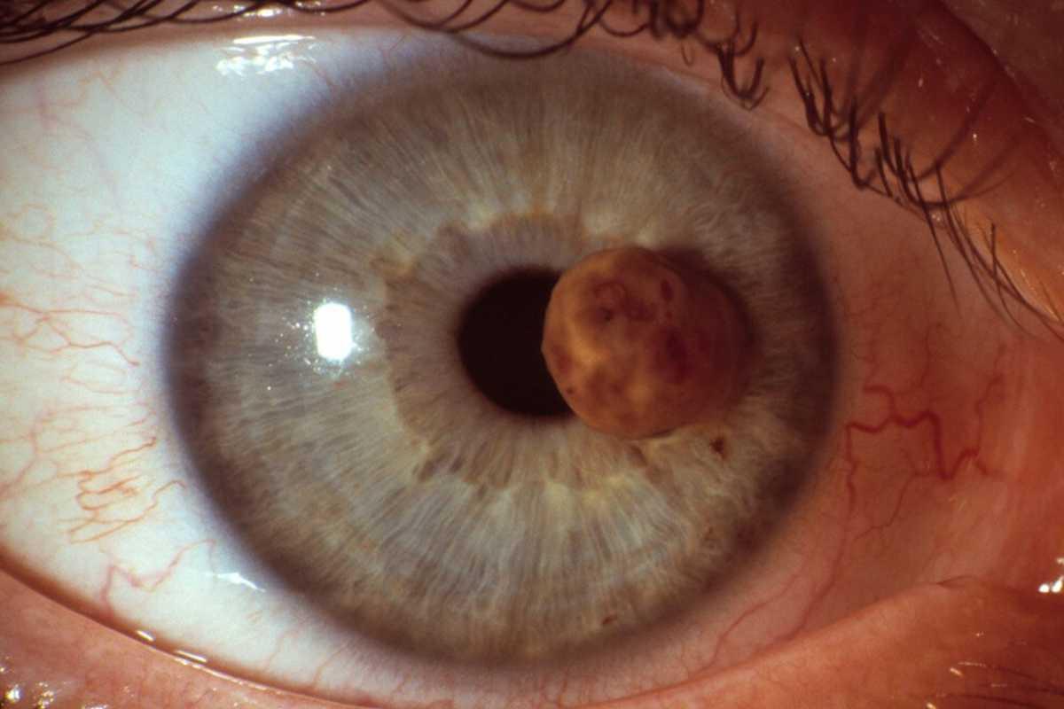 El melanoma uveal representa entre el 3 y el 5% de los melanomas.
