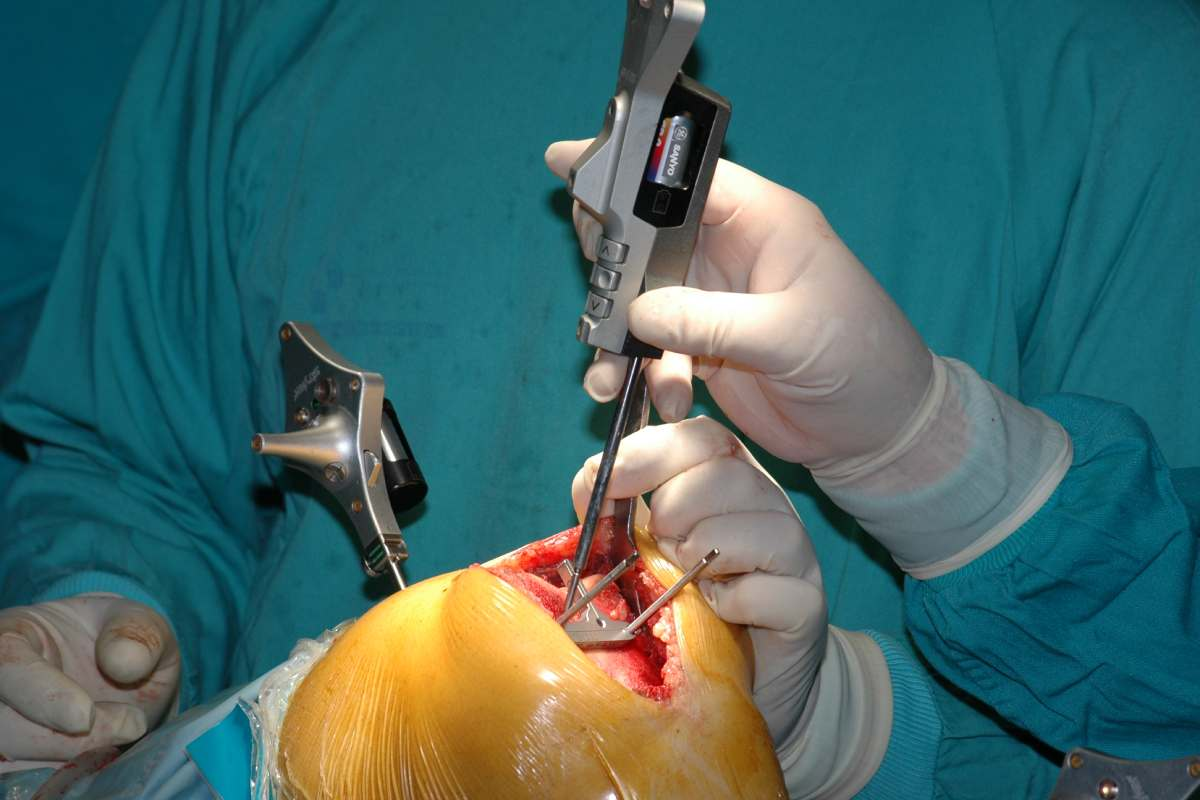 Los implantes no cementados de nueva generación tienen buenos resultados y las tasas de supervivencia son cada vez mejores.
