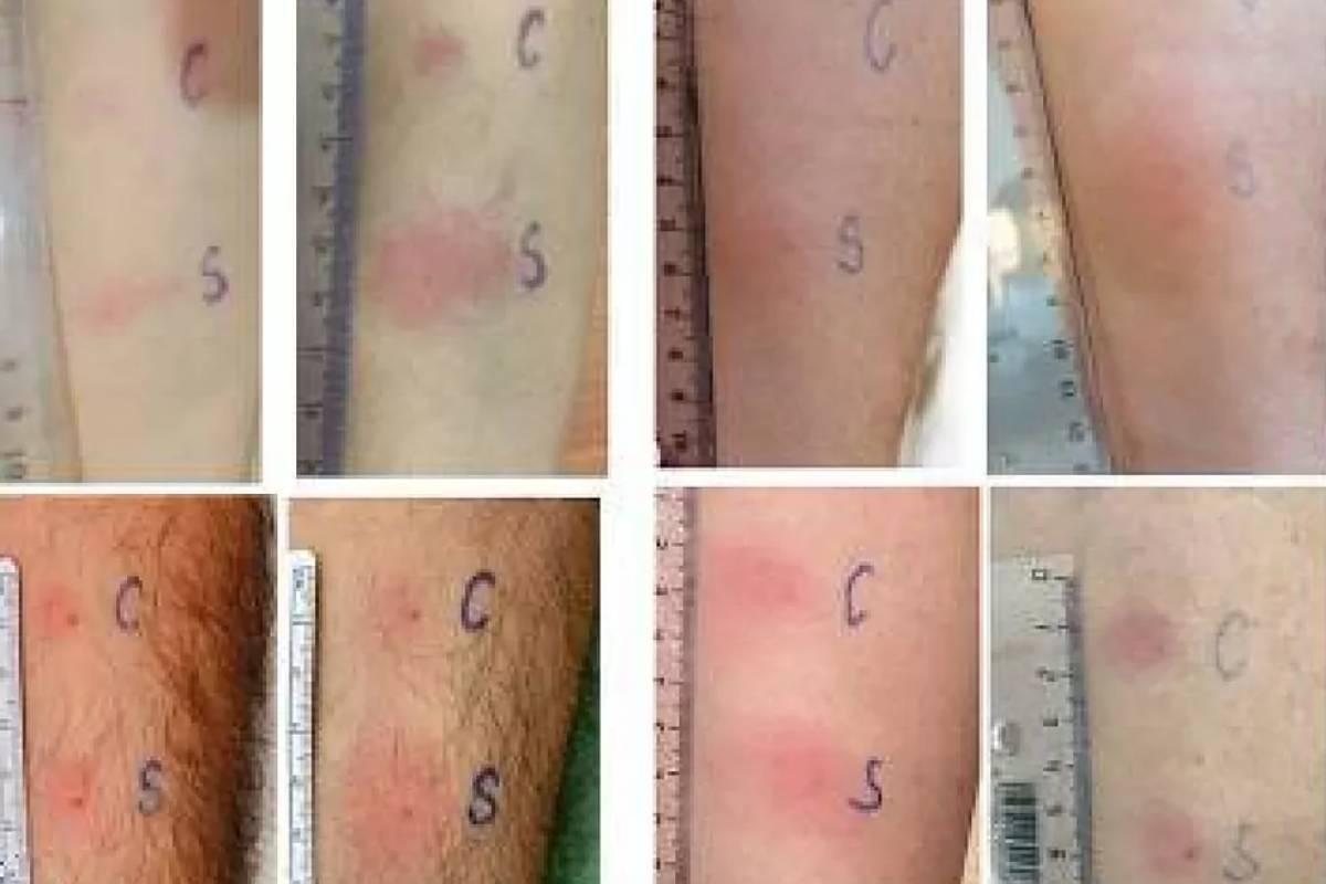 Ejemplos de reacción local debida al test de detección de inmunidad celular. Clin Immunol.