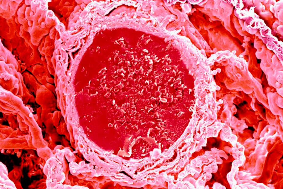 La PTTa produce lesión de vasos de pequeño calibre, cuya obstrucción da lugar a una isquemia tisular en cualquier órgano.