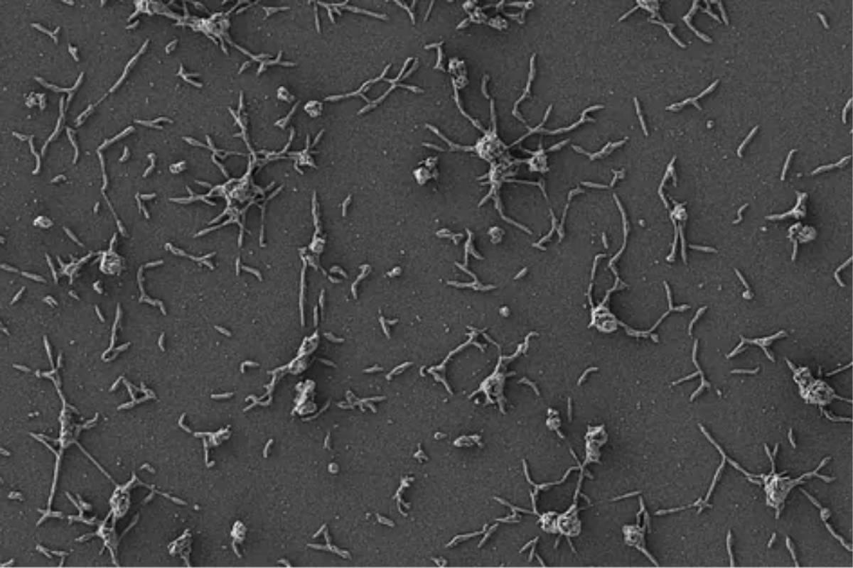 Células de Mycoplasma pneumoniae, pequeñas bacterias que están naturalmente adaptadas al pulmón humano.MARÍA LLUCHCRG
