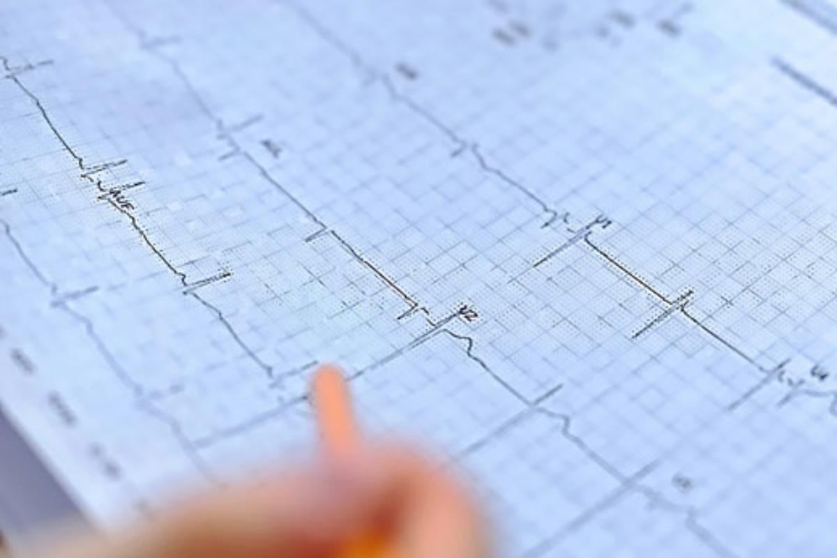 La startup Idoven trata de prevenir enfermedades cardiacas, redefiniendo la forma de diagnosticar las arritmias mediante inteligencia artificial y soluciones de salud digital.