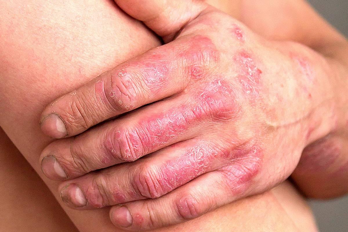 Paciente con psoriasis.