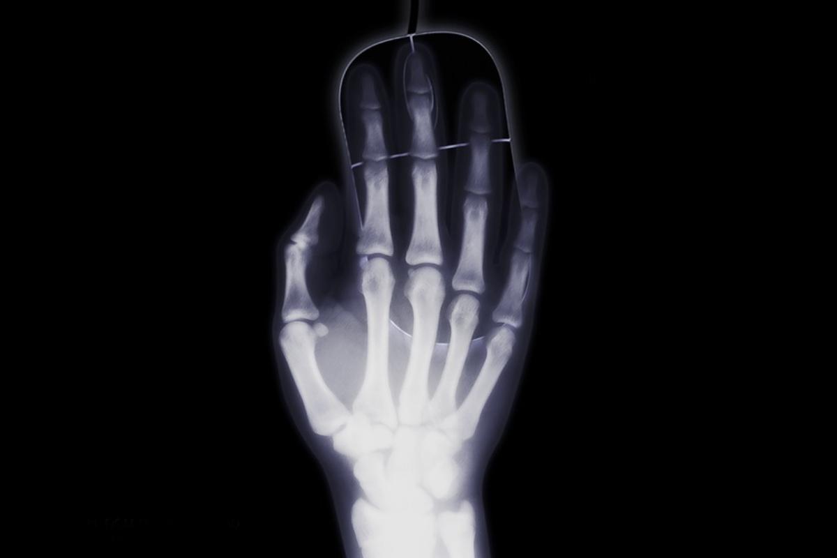 El dolor cubital de la muñeca, causado por un amplio espectro de lesiones óseas y de tejidos blandos, es la afección clínica más frecuente de la muñeca.