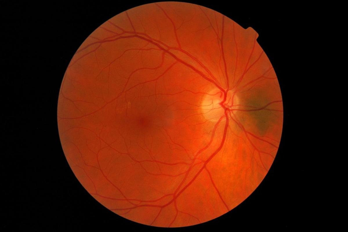 Imagen de una retina.
