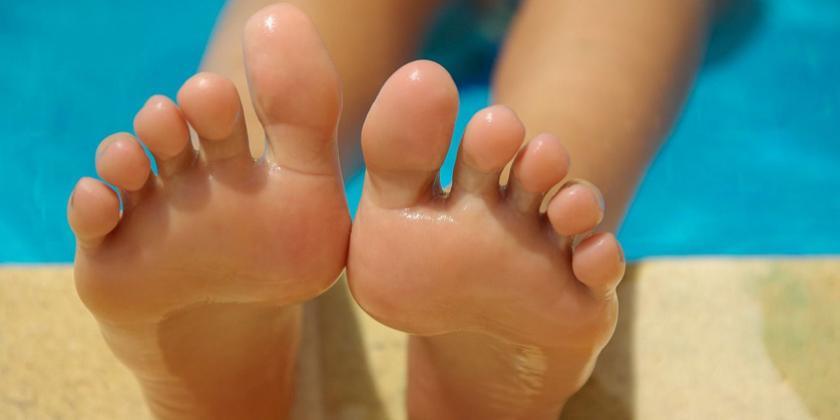 hongos pies niños