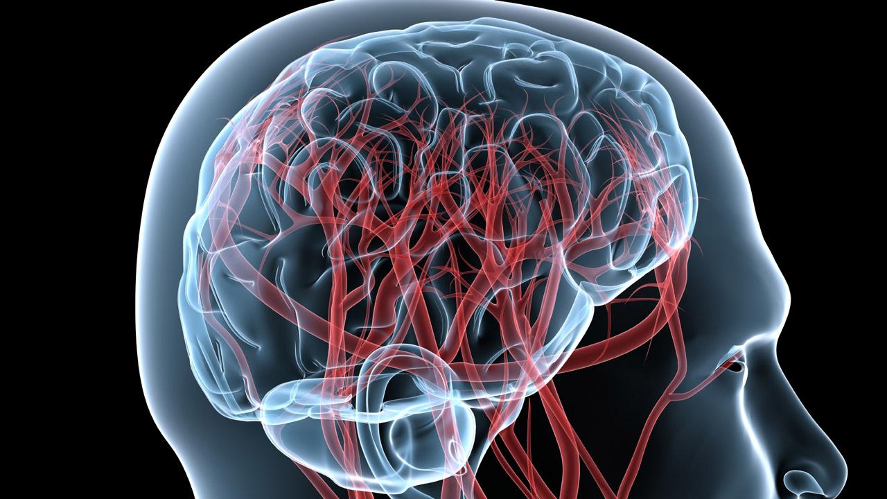 El ictus es una urgencia sanitaria que abordan las enfermeras neurológicas.