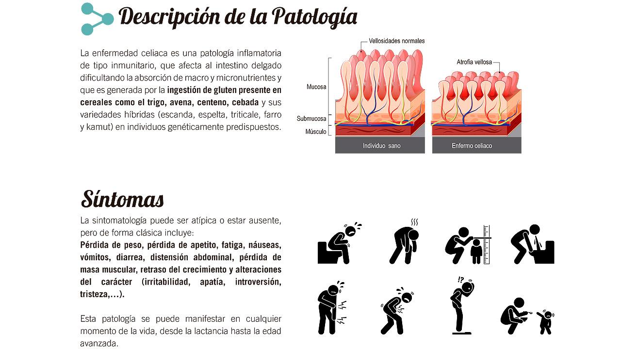 Causas y síntomas de la celiaquía.