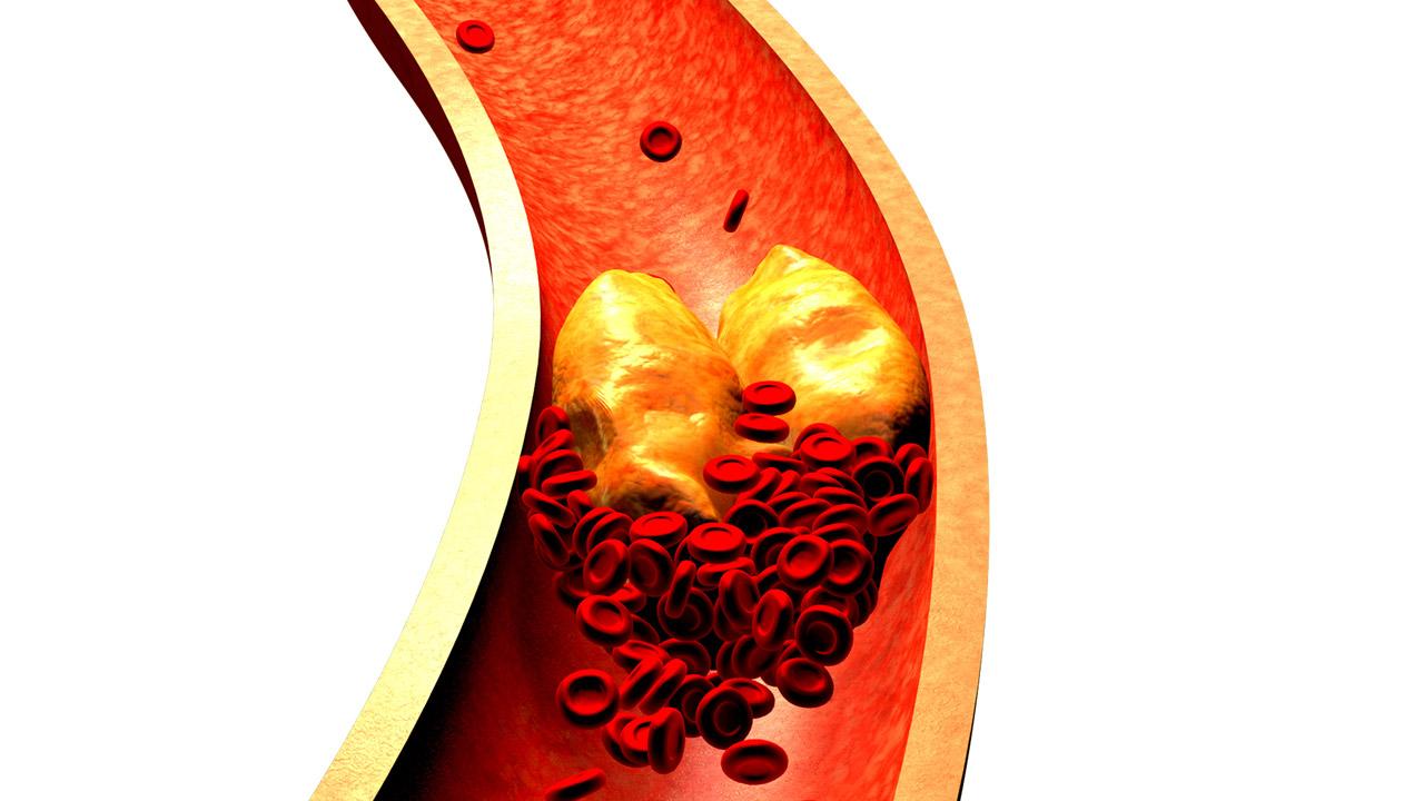 Uno de cada cinco españoles mayor de 18 años tiene niveles altos de colesterol.